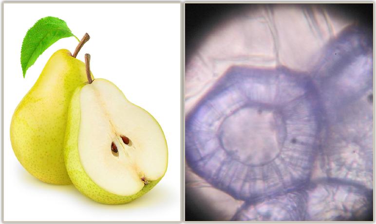 Armutta taş hücre (x400)