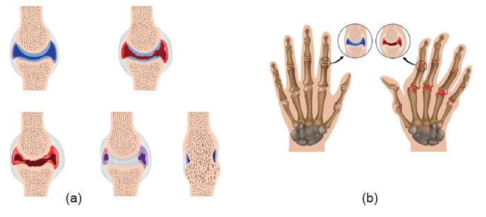 (a) Bacak kemiğinde görülen bozulmalar, (b) ellerde görülen bozulmalar
